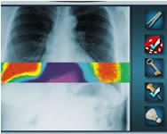 Crazy catscan online orvosos játékok
